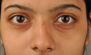 Why Look for Dark Eye Circle Removal at Ensoul